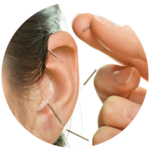 Akupunktur - Vivea Gesundheitshotels